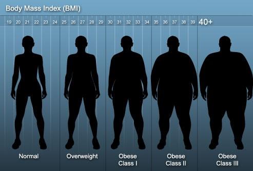 درباره چاقی و اضافه وزن بیشتر بدانید
